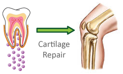 Mesenchymal Stem Cells regenerate cartilage